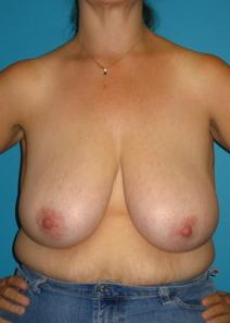 Breast Reduction Before Photo by Michael Bogdan, MD, FACS; Southlake, TX - Case 8033