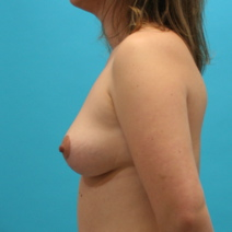 Breast Lift Picture
