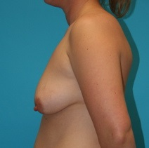 Breast Lift Before Photo by Michael Bogdan, MD, MBA, FACS; Southlake, TX - Case 8163