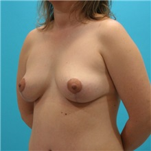 Breast Lift After Photo by Michael Bogdan, MD, MBA, FACS; Southlake, TX - Case 8163
