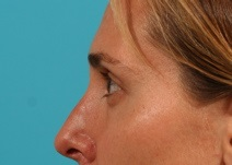 Eyelid Surgery After Photo by Michael Bogdan, MD, MBA, FACS; Southlake, TX - Case 8207
