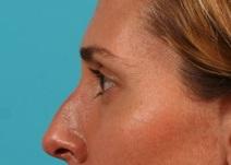 Eyelid Surgery Before Photo by Michael Bogdan, MD, MBA, FACS; Southlake, TX - Case 8207