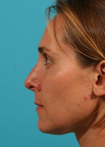 Rhinoplasty After Photo by Michael Bogdan, MD, MBA, FACS; Southlake, TX - Case 8208