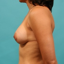 Breast Augmentation After Photo by Michael Bogdan, MD, MBA, FACS; Southlake, TX - Case 8580