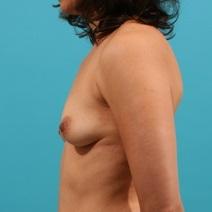Breast Augmentation Before Photo by Michael Bogdan, MD, MBA, FACS; Southlake, TX - Case 8580