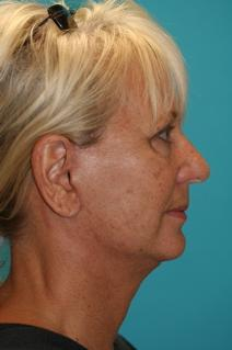 Facelift After Photo by Michael Bogdan, MD, MBA, FACS; Southlake, TX - Case 8696