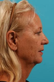 Facelift Before Photo by Michael Bogdan, MD, MBA, FACS; Southlake, TX - Case 8696