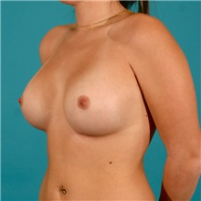 Breast Augmentation After Photo by Michael Bogdan, MD, MBA, FACS; Southlake, TX - Case 9299