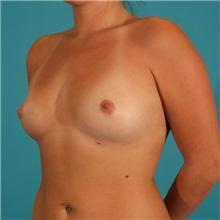 Breast Augmentation Before Photo by Michael Bogdan, MD, MBA, FACS; Southlake, TX - Case 9299