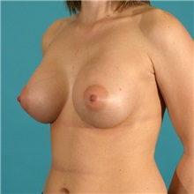 Breast Augmentation After Photo by Michael Bogdan, MD, MBA, FACS; Southlake, TX - Case 9560
