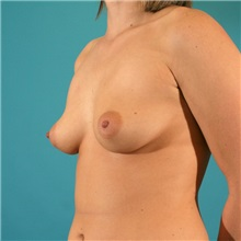 Breast Augmentation Before Photo by Michael Bogdan, MD, MBA, FACS; Southlake, TX - Case 9560
