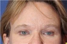 Eyelid Surgery After Photo by Richard Beil, MD; Ann Arbor, MI - Case 31428