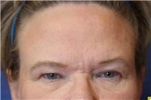 Eyelid Surgery Before Photo by Richard Beil, MD; Ann Arbor, MI - Case 31428