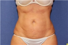 Liposuction After Photo by Richard Beil, MD; Ann Arbor, MI - Case 31431