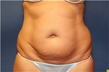 Liposuction Before Photo by Richard Beil, MD; Ann Arbor, MI - Case 31431