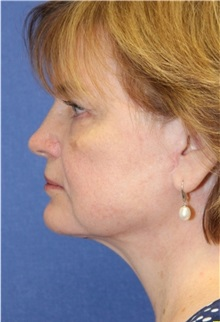 Facelift After Photo by Richard Beil, MD; Ann Arbor, MI - Case 31432