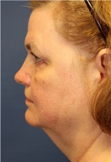 Facelift Before Photo by Richard Beil, MD; Ann Arbor, MI - Case 31432