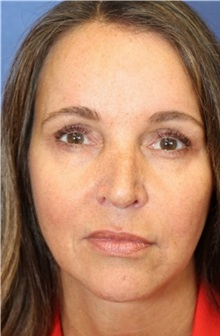 Brow Lift After Photo by Richard Beil, MD; Ann Arbor, MI - Case 31438