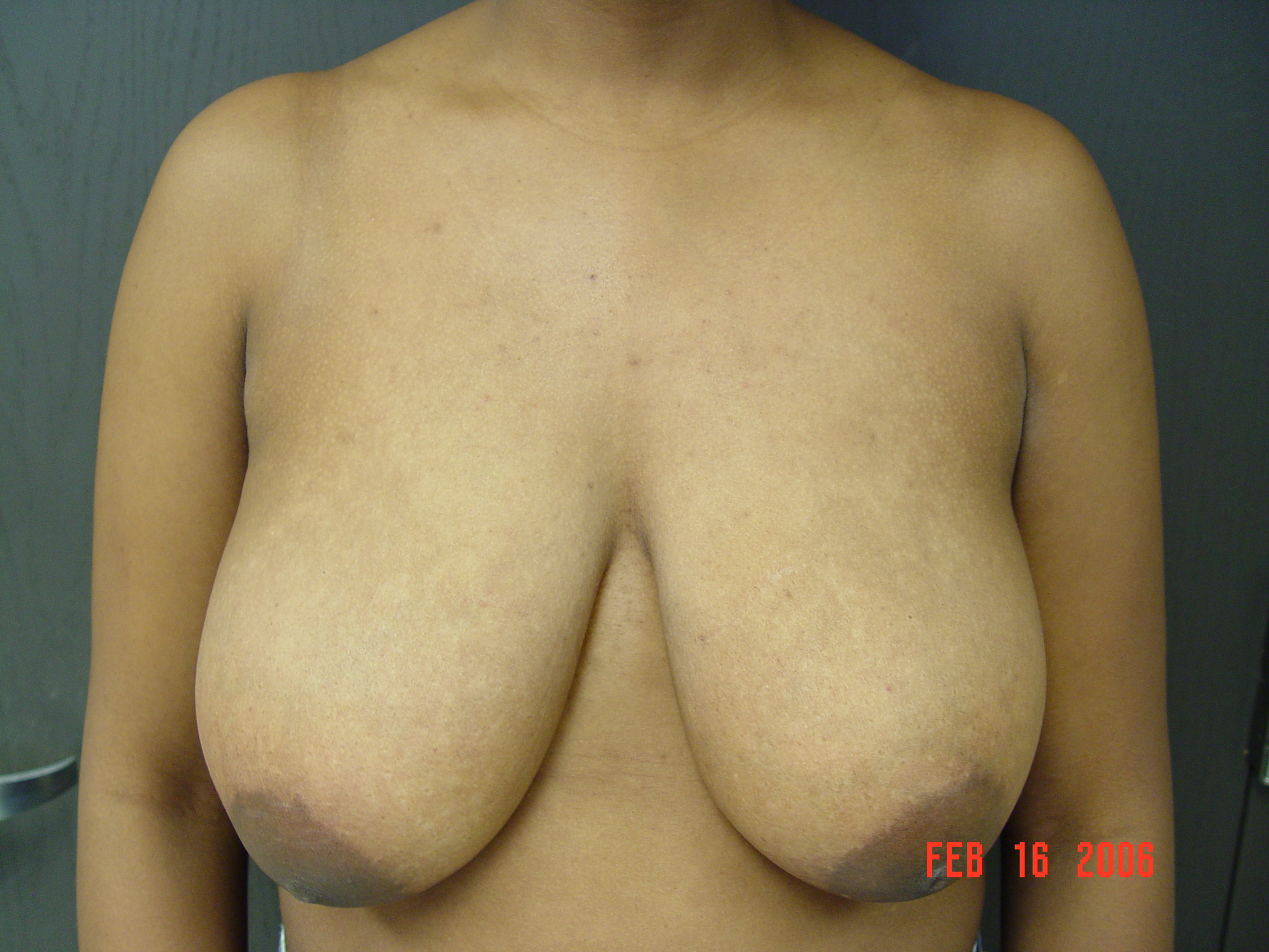 Breast Reduction Picture