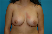 Breast Augmentation After Photo by D'Arcy Honeycutt, MD; Bismarck, ND - Case 23834