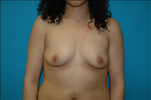 Breast Augmentation Before Photo by D'Arcy Honeycutt, MD; Bismarck, ND - Case 23834