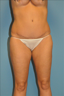 Tummy Tuck After Photo by D'Arcy Honeycutt, MD; Bismarck, ND - Case 24254