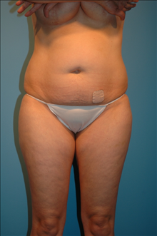 Tummy Tuck Before Photo by D'Arcy Honeycutt, MD; Bismarck, ND - Case 24254