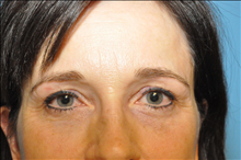 Eyelid Surgery After Photo by D'Arcy Honeycutt, MD; Bismarck, ND - Case 24316