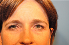 Eyelid Surgery Before Photo by D'Arcy Honeycutt, MD; Bismarck, ND - Case 24316