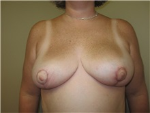 Breast Reduction After Photo by Thomas Wiener, MD; Houston, TX - Case 37351