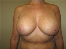Breast Augmentation After Photo by Thomas Wiener, MD; Houston, TX - Case 37356