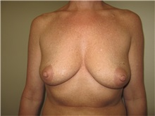 Breast Augmentation Before Photo by Thomas Wiener, MD; Houston, TX - Case 37356