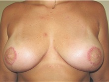 Breast Lift After Photo by Thomas Wiener, MD; Houston, TX - Case 37357
