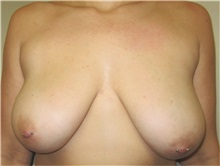 Breast Lift Before Photo by Thomas Wiener, MD; Houston, TX - Case 37357