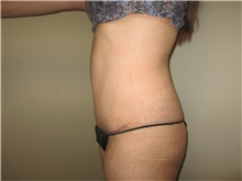 Tummy Tuck After Photo by Thomas Wiener, MD; Houston, TX - Case 37358