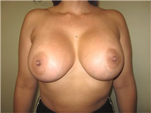 Breast Augmentation After Photo by Thomas Wiener, MD; Houston, TX - Case 37359