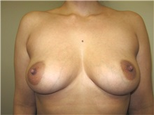 Breast Augmentation Before Photo by Thomas Wiener, MD; Houston, TX - Case 37359