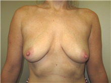 Breast Augmentation Before Photo by Thomas Wiener, MD; Houston, TX - Case 37360