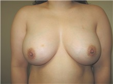 Breast Implant Revision After Photo by Thomas Wiener, MD; Houston, TX - Case 37361