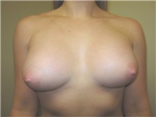 Breast Augmentation After Photo by Thomas Wiener, MD; Houston, TX - Case 37362