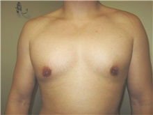 Male Breast Reduction After Photo by Thomas Wiener, MD; Houston, TX - Case 37363