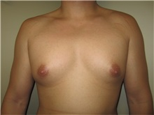 Male Breast Reduction Before Photo by Thomas Wiener, MD; Houston, TX - Case 37363