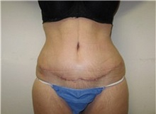 Tummy Tuck After Photo by Thomas Wiener, MD; Houston, TX - Case 37366