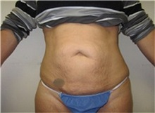 Tummy Tuck Before Photo by Thomas Wiener, MD; Houston, TX - Case 37366