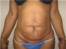 Tummy Tuck Before Photo by Thomas Wiener, MD; Houston, TX - Case 37367