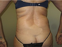 Liposuction After Photo by Thomas Wiener, MD; Houston, TX - Case 37368