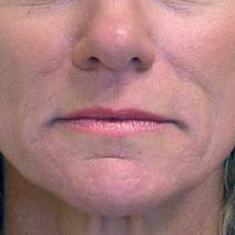 Dermal Fillers After Photo by Carol Ann Aylward, MD; Kansas City, MO - Case 9052