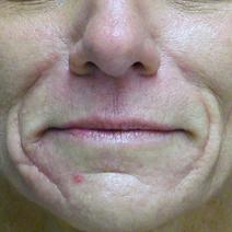 Dermal Fillers Before Photo by Carol Ann Aylward, MD; Kansas City, MO - Case 9052