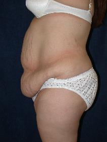Tummy Tuck Before Photo by Stewart Wang, MD FACS; Pasadena, CA - Case 9262