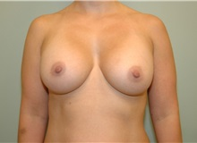 Breast Augmentation After Photo by Elisa Burgess, MD; Lake Oswego, OR - Case 26942